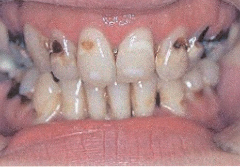Meth Physical Signs Mouth